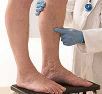 Deep Vein Thrombosis Treatment in Southlake, TX
