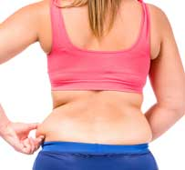 Excess Fat Treatment in Orlando, FL