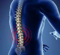 Scoliosis Treatment in Southlake, TX
